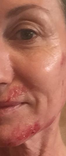 Myprettyface